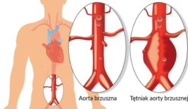 Profilaktyka aorty jamy brzusznej może uratować życie